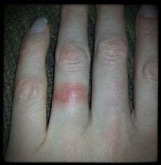 wedding ring rash problem solver i need to give this a try i not wearing my ring me