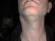 geschwollene lymphknoten hals einseitig lump flickr photo