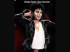 Michael Jackson Vitiligo - michael jackson had vitiligo