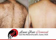 laser hair removal of li trounce back hair the sure handed laser hair removal for men
