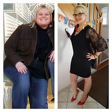 opération pour perdre du poids perdre du poids sans faire sport soinsaunaturel