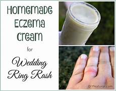 homemade eczema relief for wedding ring rash and more