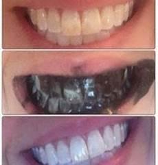 se blanchir les dents naturellement en une semaine