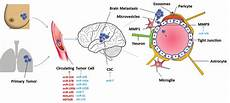 Brain Cancer Diagram by The Metastatic Process Of Cancer Cells To The Brain