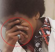 Michael Jackson Vitiligo - the vitiligo proof michael jackson photo 32272045