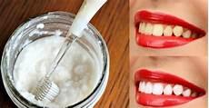 comment obtenir des dents blanches rapidement mode islam