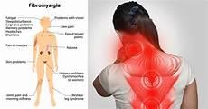 Fibromyalgie Symptome Test - 9 remedies for fibromyalgia everyone should