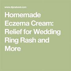 homemade eczema relief for wedding ring rash and more essential living rashes