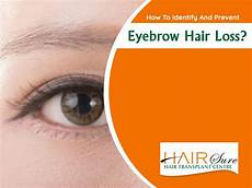 eyebrow hair loss what to do about your thinning eyebrows how to identify and prevent eyebrow hair loss hair sure