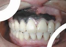 dents qui se déchaussent photos chirurgie dentaire cas des gencives noires