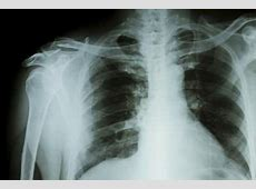 symptoms of pneumonia in elderly