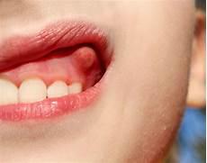 Entz 252 Ndungen Im Mund Kiefer Und Gesichtsbereich Mund