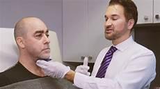 Belkyra Traitement Du Menton Sans Chirurgie