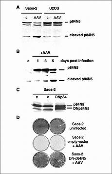 cells with defective p53 p21 prb pathway are susceptible to apoptosis induced by p84n5 via