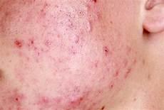 rottura vasi capillari rottura capillari viso cause cura della pelle