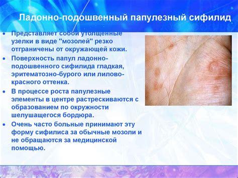 Syfilis Synonym