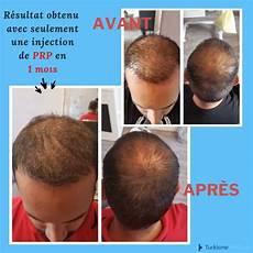 chute de cheveux prp r 233 sultat obtenu avec seulement une
