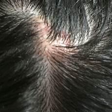 Krusten Auf Der Kopfhaut - hilfe was ist das kopfhautentz 252 ndung gesundheit haare