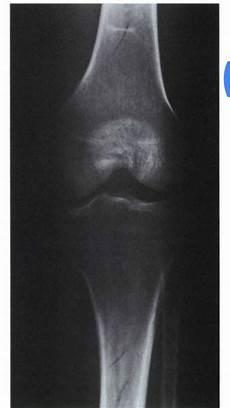 Gambaran Radiograph Menurut Kualitas Gambaran