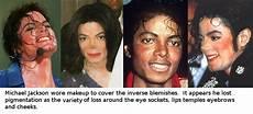Michael Jackson Haut - cure for vitiligo the michael jackson skin