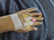 Paling Bagus 16 Gambar Tangan Di Infus Anak Remaja
