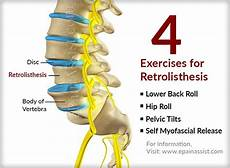 exercises for grade 1 retrolisthesis pin on therapy