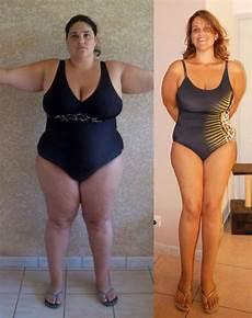 opération pour perdre du poids perdre du poids avant bypass perte de poids et