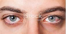 manque de magnésium oeil irritated bloodshot eye stock photo more pictures of
