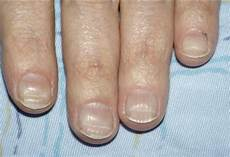 fingernägel längsrillen ursache l 228 ngsrillen querrillen fingern 228 gel behandlung mangel