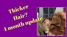 4 Month Losing Hair
