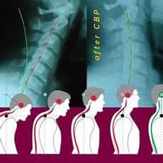chiropractic biophysics 21 reviews chiropractors 950 e riverside dr eagle id phone