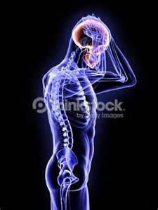 Concussion Brain X-ray