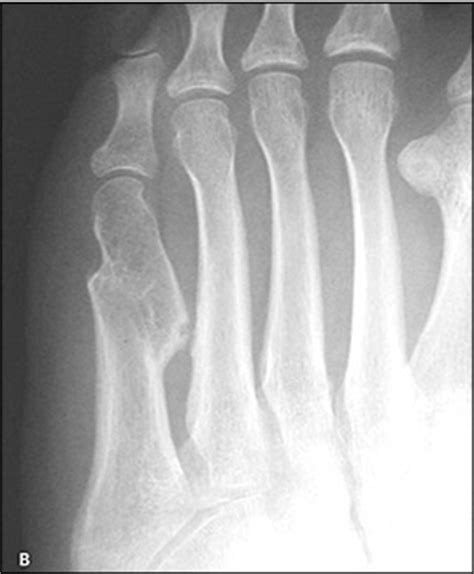 metatarsal fractures physiopedia