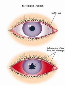 Uveitis  Uveal Tract Swelling