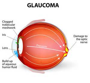 Glaucoma Awareness Month - Discovery Eye Foundation Glaucoma