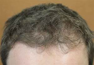 Minoxidil Does It Help With Hair Loss In The Front