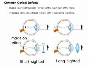 The Eye  Anatomy  Functioning  Common Defects  Includes
