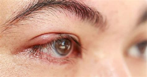 chalazion treatment home options  tips home remedies