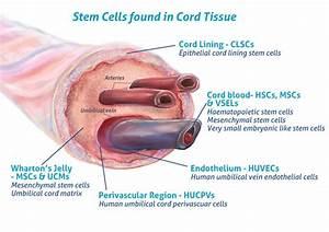 Umbilical Cord Tissue Stem Cells