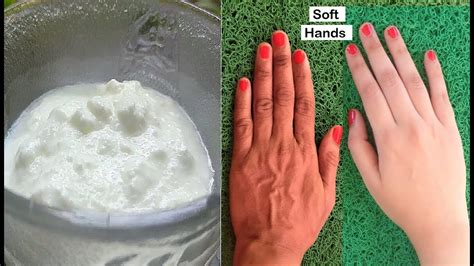 Remove Wrinkles from Hands & Get Baby Soft Hands, Treat