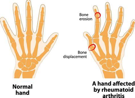Doe Rã Sumã by Molly S Fund Rheumatoid Arthritis Molly S Fund