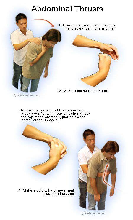 chocking  aid tips bing images emergency medical