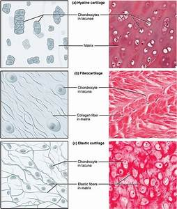 Difference between Hyaline Cartilage and Elastic Cartilage ...