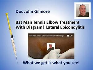 Bat Man Tennis Elbow Treatment With Diagram  Lateral Epicondylitis