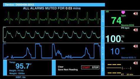 Top 10 EKG/ECG Monitors Reviews - Find Health Tips