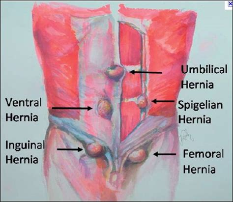 home design app cheats hernia locations diagram 28 images hernia emedmd