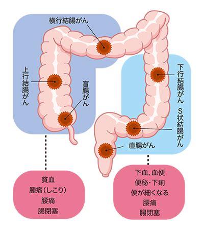 大腸 癌 症状