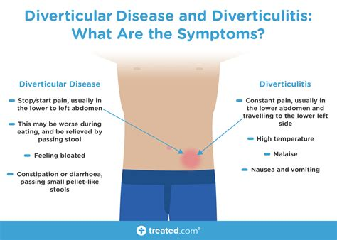 Diverticulitis And Ibs Is There A Link?