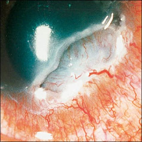 ocular manifestations  autoimmune disease american