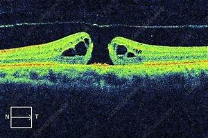 Macular Hole  Oct Scan - Stock Image C024  0946